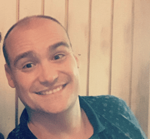 Alopecia Raul antes de Vipelín